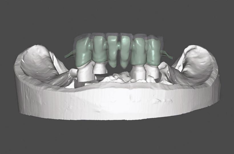 Echo CAD CAM - The New Modular CAD-CAM System - Implantology